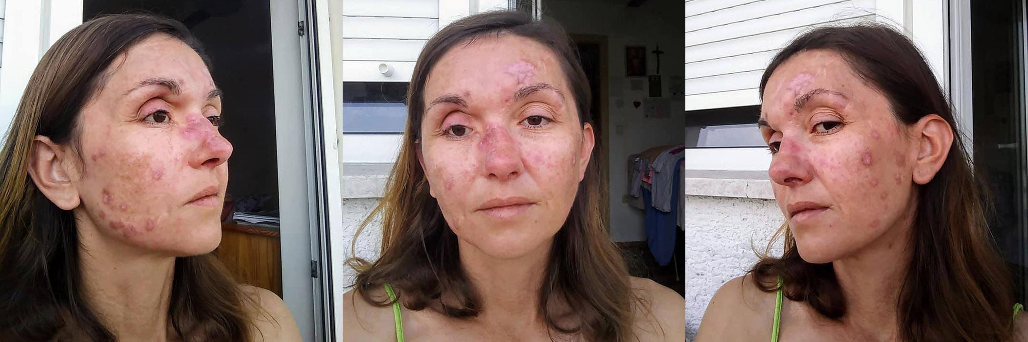 lezije lupus